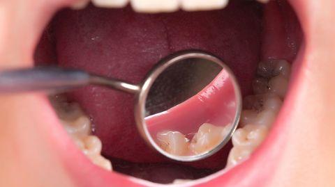 Der Zahnarzt schaut genau hin: Schert der Unterkiefer zur Seite aus?