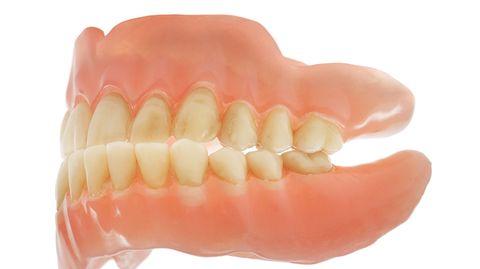 Nicht immer passt das so gut: Klappen die Kiefer zu schief aufeinander, kann das Zähne kosten
