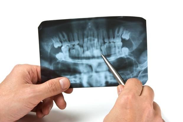 Das Röntgenbild: ein Schwarz-weiß-Film über den Körper
