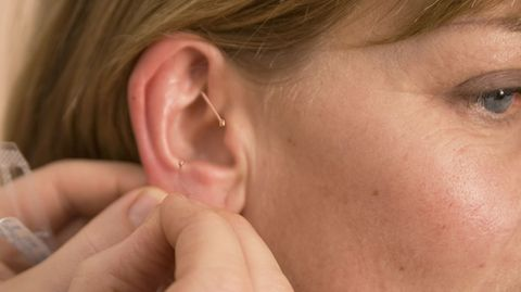 Das Ohr: In der Muschel liegen besonders viele Akupunkturpunkte