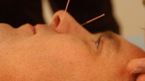 Akupunktur hilft bei Kopfschmerzen so gut Medikamente, zeigen Studien