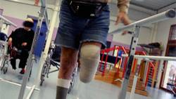 Ein Beinamputierter während der Reha. In den USA hat ein Mann sein verlorenes Körperstück geräuchert