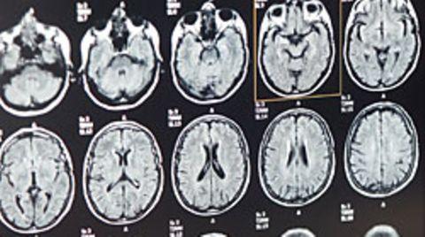 Magnetresonanztomographie-Aufnahmen eines Gehirns
