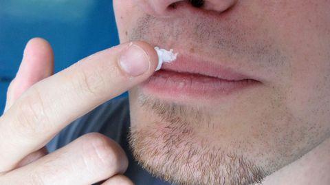 Herpescremes halten die Haut geschmeidig und lindern das Jucken