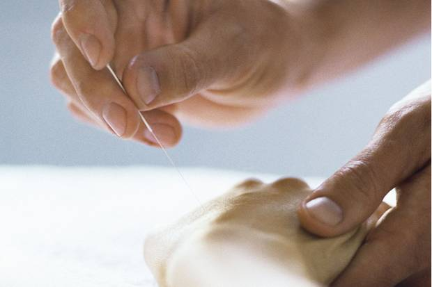 Akupunktur kann bei einer Allergie die schulmedizinische Behandlung ergänzen