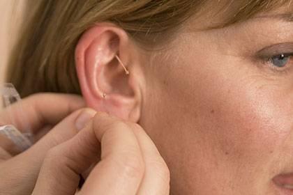Der Arzt muss die Akupunkturnadeln an ganz bestimmte Stellen setzen