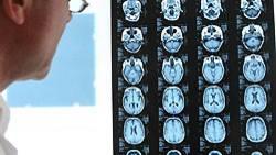 Bei der Behandlung von Hirntumoren könnte die Nanotechnik helfen