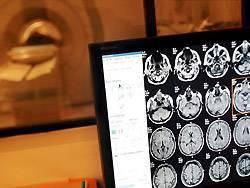 Im Kernspin zeigen sich Alzheimer-bedingte Schrumpfungen des Gehirns