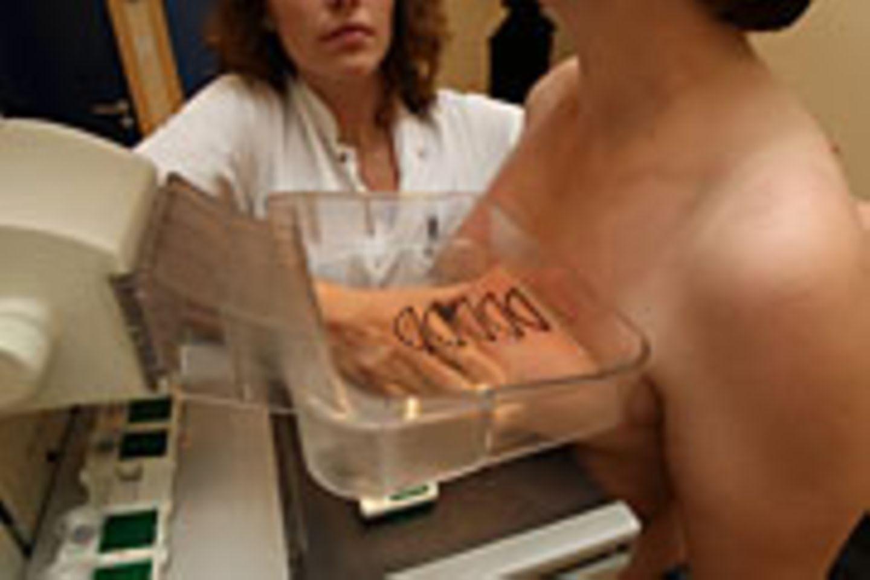 Die Mammografie ist eine Röntgenuntersuchung der Brust