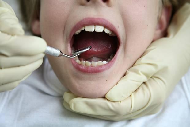 Beliebte Zusatzleistung beim Zahnarzt: die profesionelle Zahnreinigung. Nutzen: unklar.