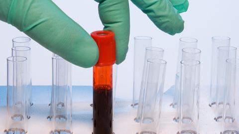 Bislang konnten Blutproben nur auf ein bestimmtes Virus hin untersucht werden. Ein neuer Test fahndet nach Hunderten Antikörpern.
