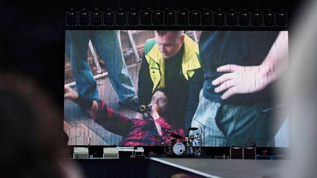Grohl-Unfall bei Konzert