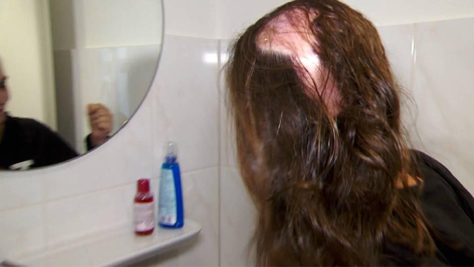 Kahler Schädel Nach Friseurunfall Sternde