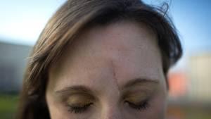 Eine lange Narbe verläuft neben dem Nasenbein von der Augenbraue bis in die Stirn einer jungen Frau. Ihre Augen sind geschlossen