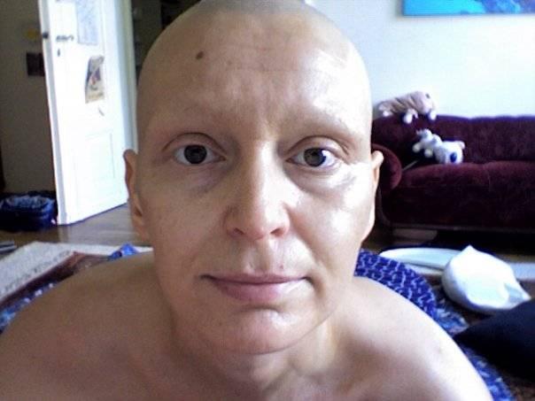 Welche haare fallen nach chemo aus
