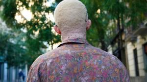 Albinismus in Afrika: Abdul Coulibaly von hinten