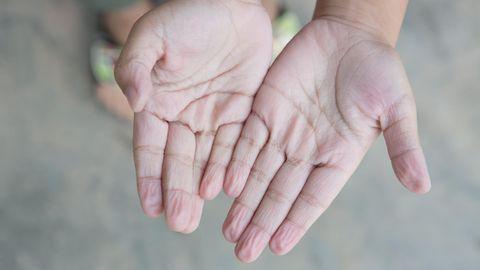 Schrumpelige Hände