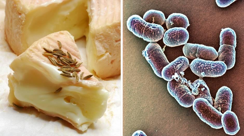 Krank durch Käse: Listerien