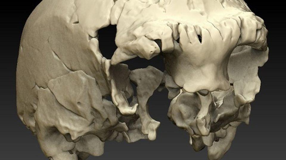 Virtuelle Rekonstruktion eines Menschenschädels