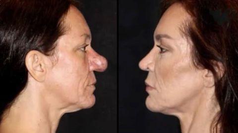 Pflegetipps: Trockene Gesichtshaut im Winter: So behandeln Sie raue oder juckende Partien richtig