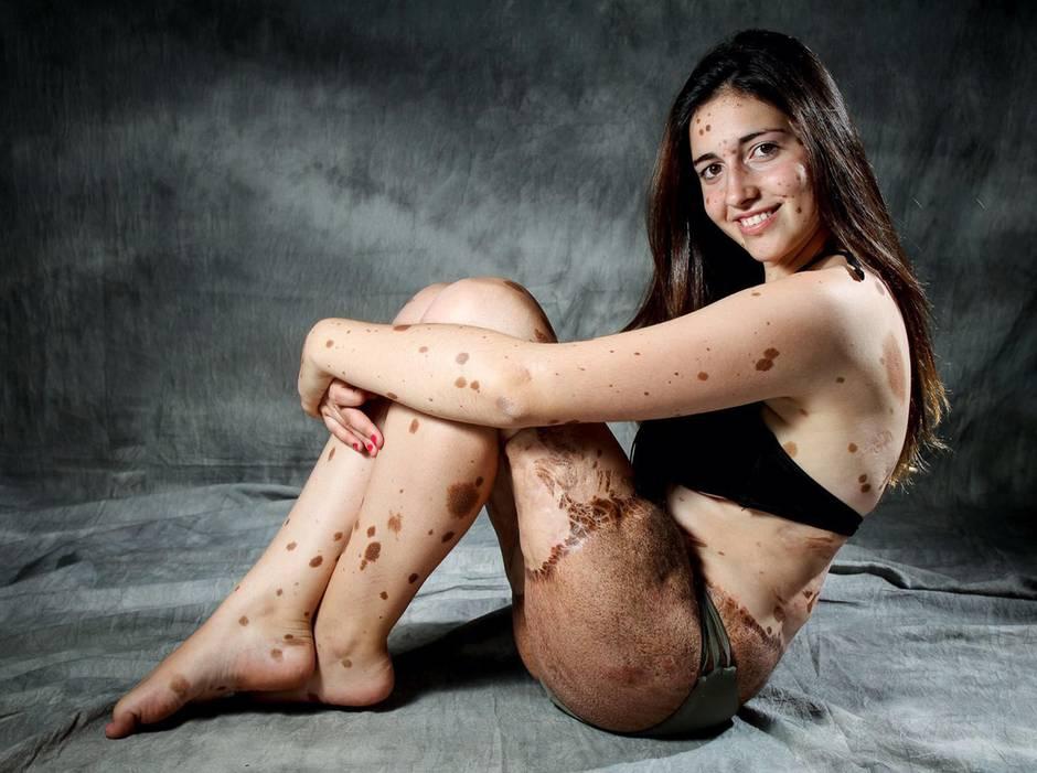 Ist stolz darauf, besonders zu sein: die 16- jährige Spanierin Alba Parejo