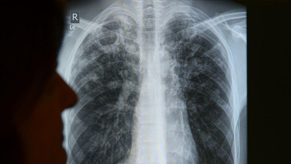 Im Berliner Tuberkulose-Zentrum wird die Röntgenaufnahme eines Patienten ausgewertet.