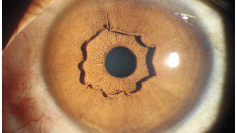 Auge mit auffälliger Iriskrause