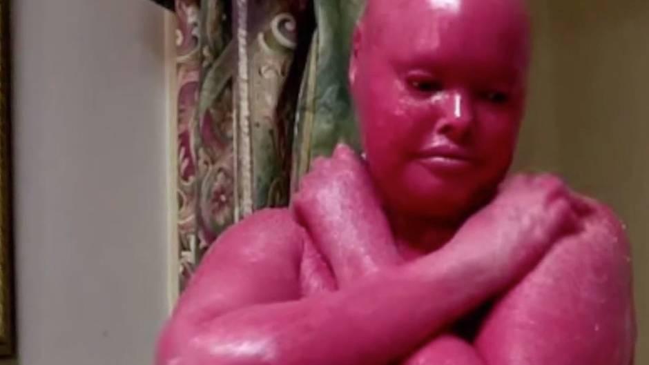 Seltene Hautkrankheit: Diese Frau überlebte, obwohl keiner an sie glaubte