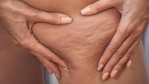 Cellulite entsteht häufig am Po