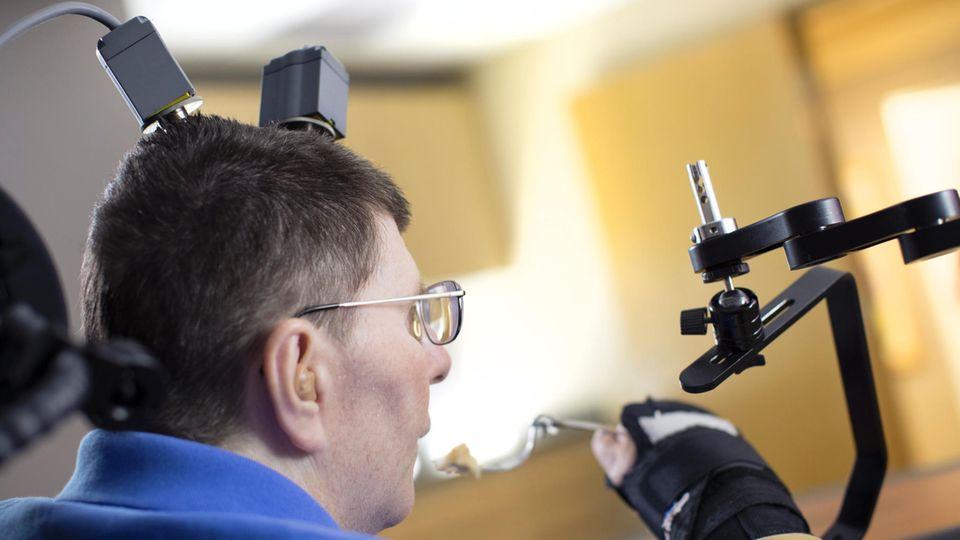 Neuroprothese: Durchbruch bei Behandlung von schwersten Lähmungen