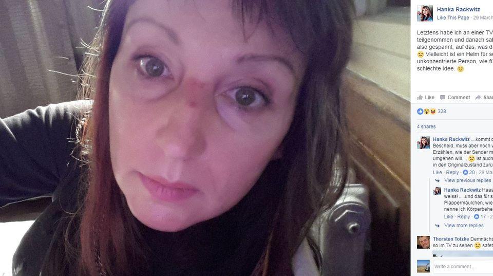 Grill den Henssler: Hanka Rackwitz stürzt