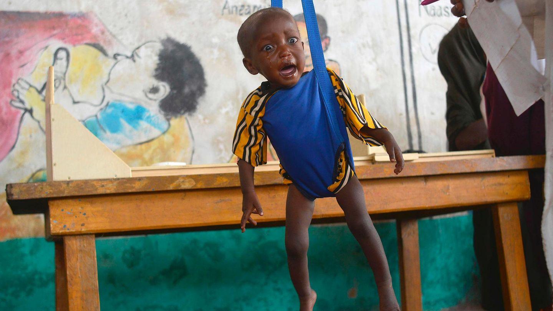 Ein unterernährtes Kind wird von Mitarbeitern eines durch Unicef finanzierten Hilfsprogramms in Somalia gewogen