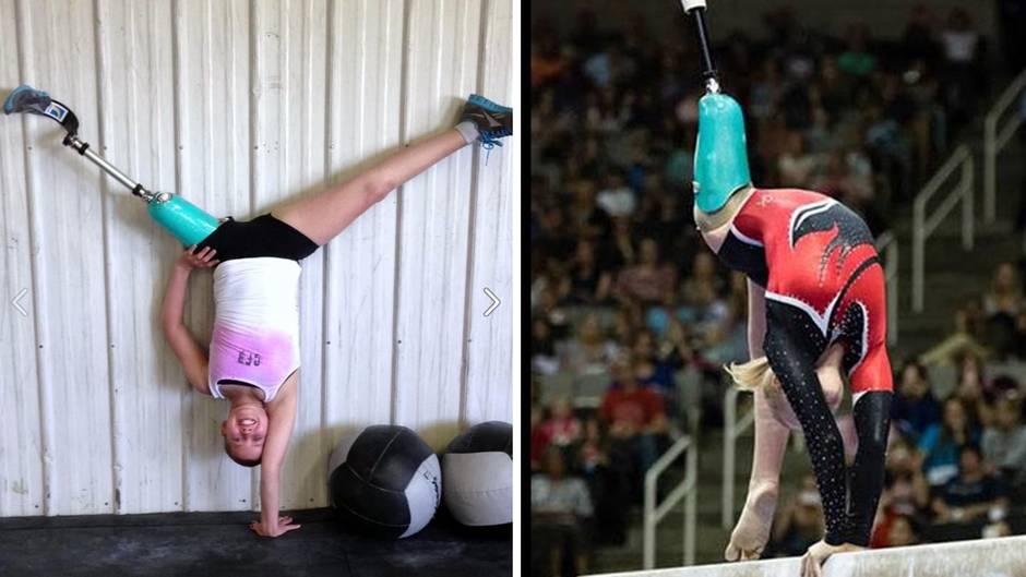 Ungebrochener Kämpfergeist: Dieser Teenager macht beim Turnen eine gute Figur - trotz Beinprothese