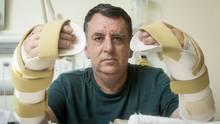 Der Brite Chris King (57) schrieb Geschichte: Als erster Patient in Großbritannien erhielt er im Juli 2016 gleich zwei Spenderhände. King hatte große Teile seiner Hände bei einem Arbeitsunfall mit einer Metallpressmaschine verloren. Nur seine Daumen blieben bei dem Unglück verschont.