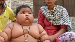 Ein sehr dickes Baby sitzt nur mit Windel vor seinen Eltern. Chahat Kumar wiegt mit acht Monaten schon 17 Kilo