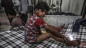 Der Junge wird nach einem Luft-Bombardement bei Damaskus in Syrien im Juli 2016 in einem Feldlazarett versorgt.