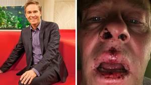 NDR-Moderator Hinnerk Baumgarten am Ballermann geschlagen