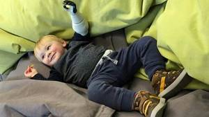 Junge mit Armprothese