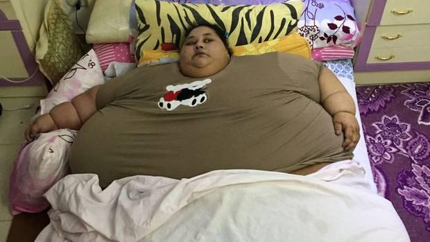 Dieses Foto zeigtEman Ahmed Abd al-Ati im Dezember 2015, also vor ihrer Operation