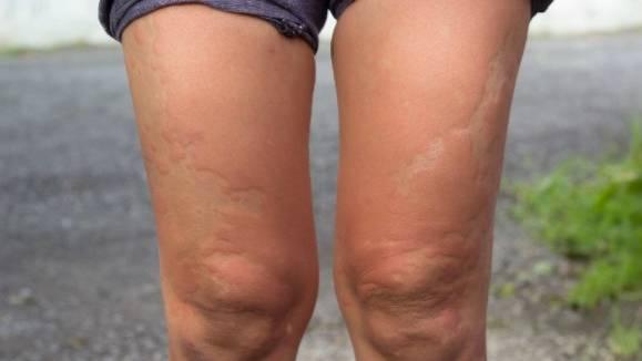 Beine mit Nesselsucht