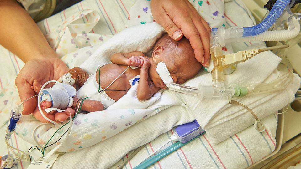 Ein zu früh geborenes Baby im Children's Hospital of Philadelphia in Philadelphia, USA