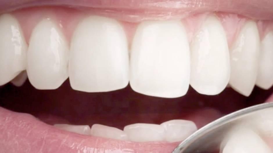 Zähne Nahaufnahme