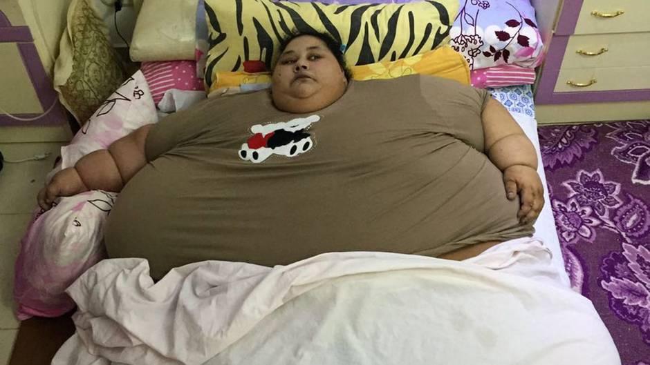 Ein Bild aus ihrem Zuhause in Alexandria: Eman Ahmed wog zu dem Zeitpunkt noch fast 500 Kilogramm