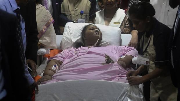 Eman Ahmed in einem Krankenhaus in Mumbai: 323 Kilo verloren.