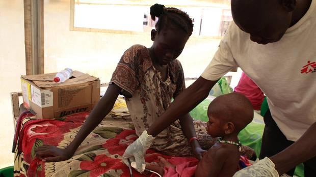 """Ein unterernährtes Kleinkind wird mit seiner Mutter von einem Doktor der """"Ärzte ohne Grenzen"""" betreut."""