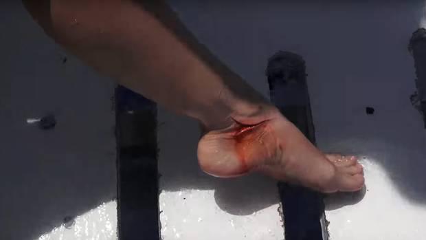 Ata Girl: Molly ist zwar geschockt, hält aber sofort den blutenden Fuß in die Kamera.