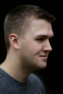 Opfer Paul B. trägt heute eine Metallplatte im Schädel, die OP-Narbe ist noch deutlich sichtbar.