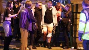 Verletzte nach dem Anschlag beim Konzert von Ariana Grande in Manchester