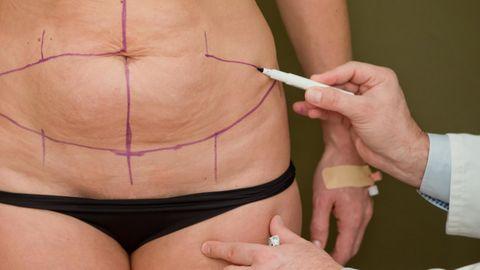 litauen plastische chirurgie