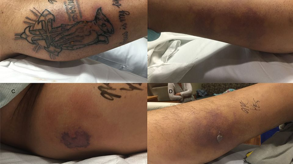 Der 31-jährige Mann hatte sich ein Kreuz und zum Gebet gefaltete Hände tätowieren lassen und ging fünf Tage später im Meer baden - mit fatalen Folgen